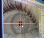 eye - from Google images